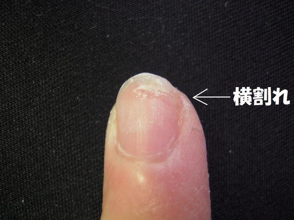 220428_0071 横は裂けながらも まだ 爪がついていたので 瞬間接着剤で補強。 でも .